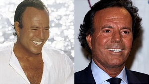 famosos con injerto capilar, tipos de alopecia y técnicas de trasplante capilar