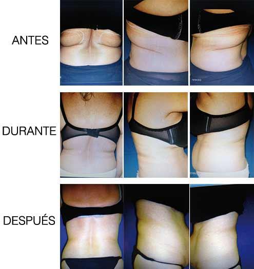 Tratamiento Aqualix - Antes y Después - Madrid, Sevilla, Huelva