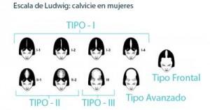 escala-ludwig-calvicie-alopecia-mujeres-trasplante-capilar