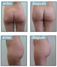 Aumento de Glúteos - Prótesis de Glúteos - Clínicas Mato Ansorena, Madrid, Sevilla, Huelva, Valencia, Alicante