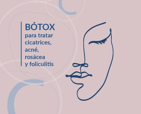 Bótox para tratar acné, rosácea, cicatrices y foliculitis.