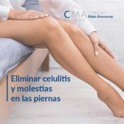 cuidado de piernas