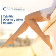 celulitis qué es