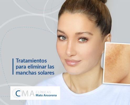 Desde el mes pasado estamos recibiendo a muchos pacientes que solicitan asesoramiento sobre los diferentes métodos para eliminar las manchas faciales. Este año, al estar nuestra piel más sensible por la falta de luz que padecimos durante el confinamiento, nuestro cutis ha experimentado un aumento de léntigos solares. A continuación, os contamos cuáles son los tratamientos para eliminar las manchas solares.   ¿Qué son las manchas solares? Las manchas en la piel son el resultado de la diferente distribución de la melanina y las células que la producen, los melanocitos. La melanina es el pigmento que nos protege frente a los rayos solares, por tanto, al exponernos al sol los melanocitos segregan más melanina. Existen diferentes tipos de manchas que nos podemos encontrar en la piel: -Léntigos (los más comunes): son hiperpigmentaciones concretas y bien delimitadas en zonas expuestas prolongadamente al sol como la cara, la espalda, el escote y las manos. -Las efélides (o pecas): pequeñas manchas sin relieve de color café claro o rojizas, localizadas frecuentemente en zonas fotoexpuestas como cara, cuello y brazos en personas de piel blanca, en jóvenes y que se intensifican con la exposición solar. Pueden convertirse más adelante en léntigos. -Nevus o lunares: acumulaciones de mayor número de melanocitos afectando a las diferentes estructuras de la piel. Por tanto, tendremos diferentes tipos de lunares en función de sus características. Resulta especialmente importante el control, sobre todo de aquellos lunares con ciertas características como son la asimetría, bordes irregulares, cambios de coloración o coloración no homogénea, diámetro superior a 6 mm y la evolución del mismo. -Melasma: manchas de color marrón claro o intenso mal delimitada o con contornos geográficos que suelen aparecer casi exclusivamente en mujeres y que se producen o agravan en el embarazo (cloasma), la toma de anticonceptivos o la menopausia. -Pigmentación post-inflamatoria: es la respuesta de la pi
