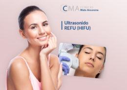 ultrasonido REFU HIFU
