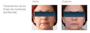 Hilos tensores faciales FTC PDO® - Madrid, Marbella, Sevilla