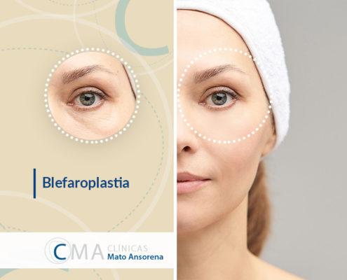 blefaroplastia técnica poco invasiva