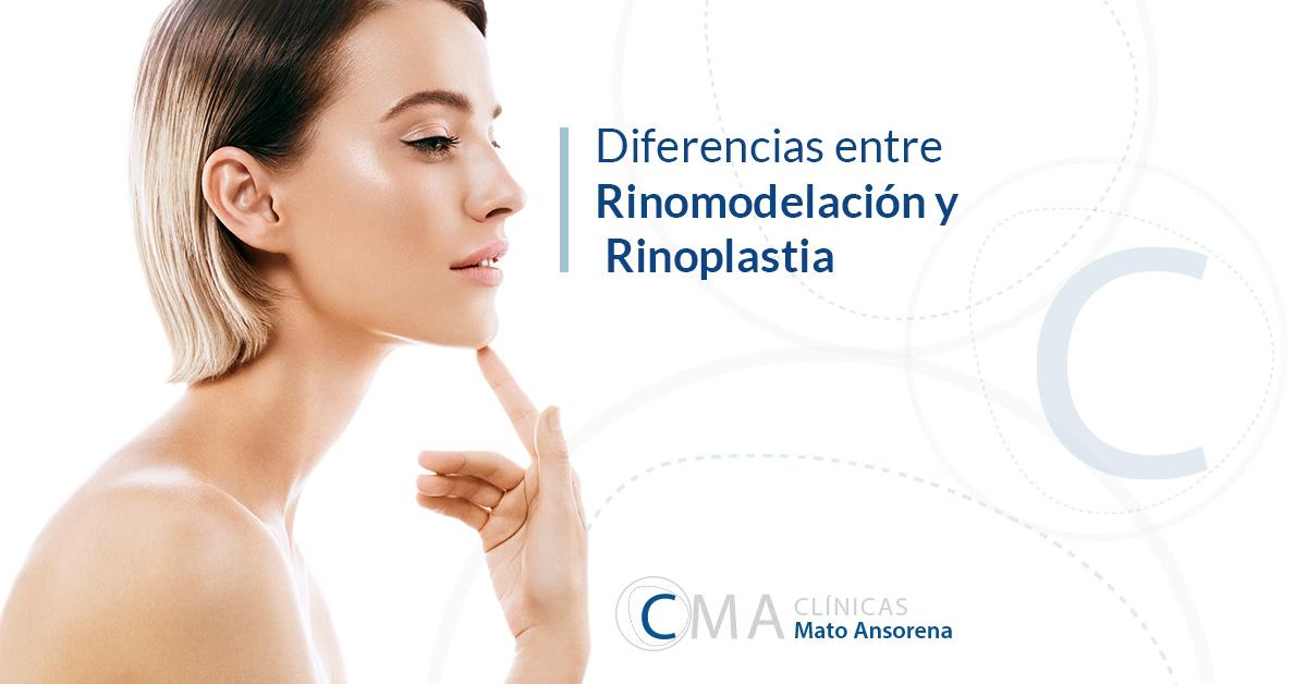 rinoplastia y rinomodelación