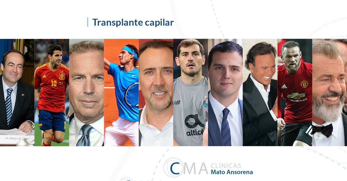 famosos trasplante capilar