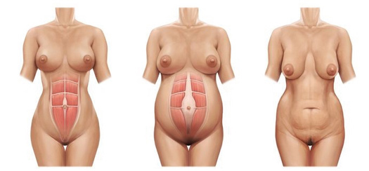 Abdominoplastia tras Embarazo