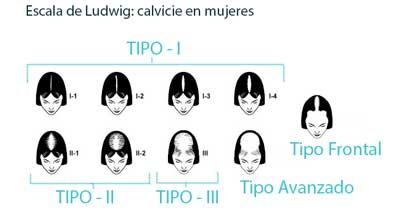 alopecia-femenina-escala-ludwig