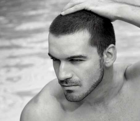 Alopecia Masculina o Androgenética