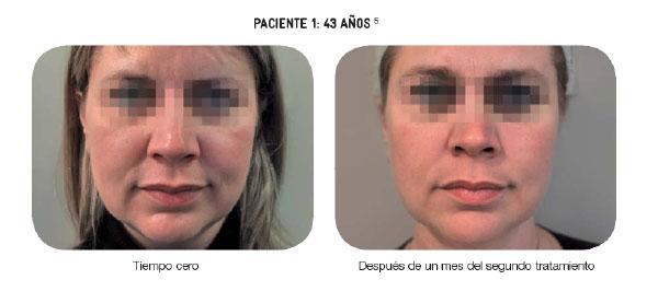 Bioremodelacion Facial Profhilo