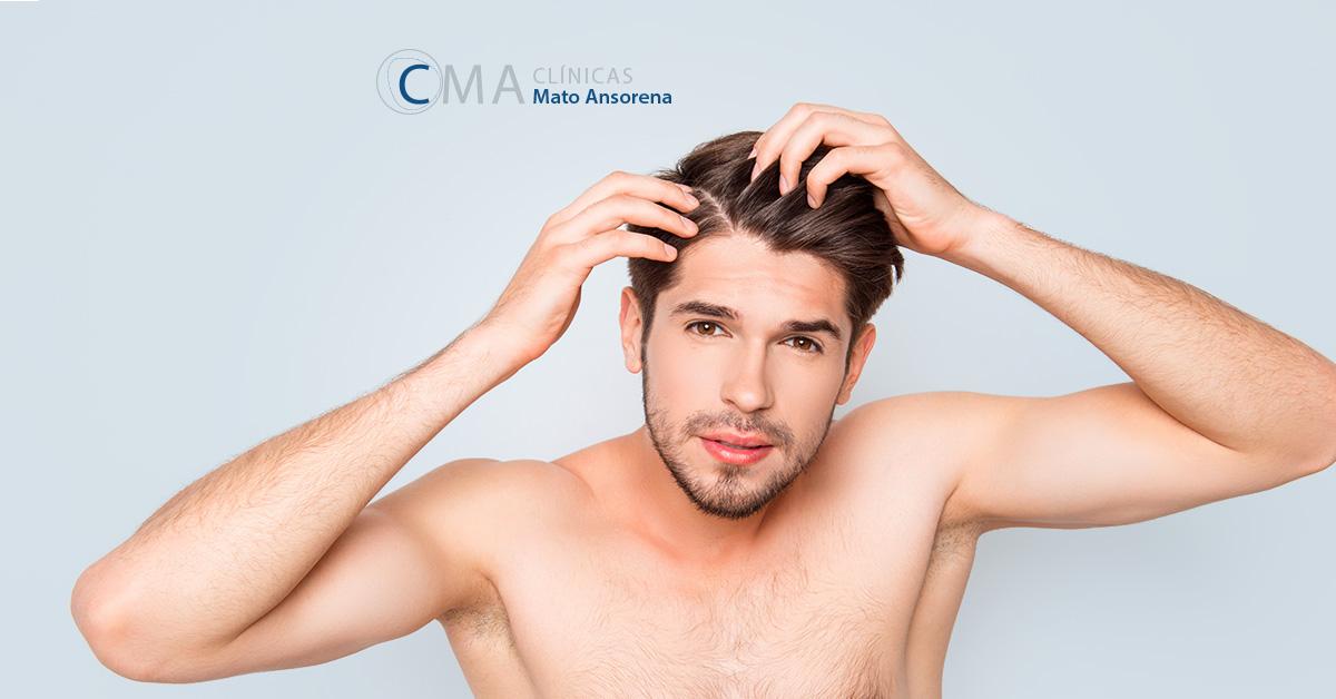 tratamientos para la alopecia