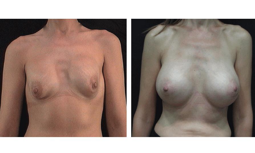 Cirugía Estética Secundaria