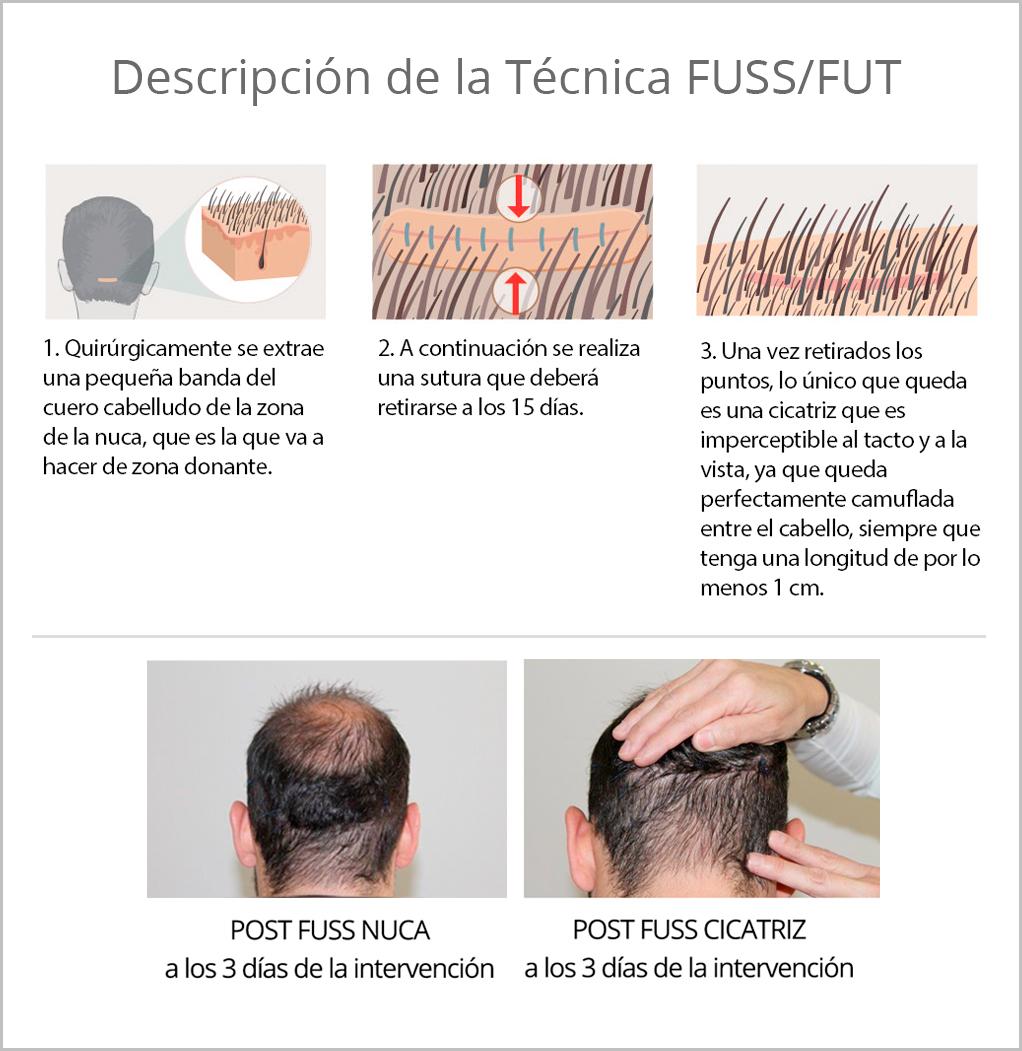descripcion-trasplante-capilar-tecnica-fuss-fut