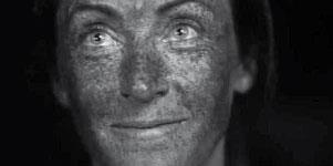 efecto-del-sol-en-la-piel