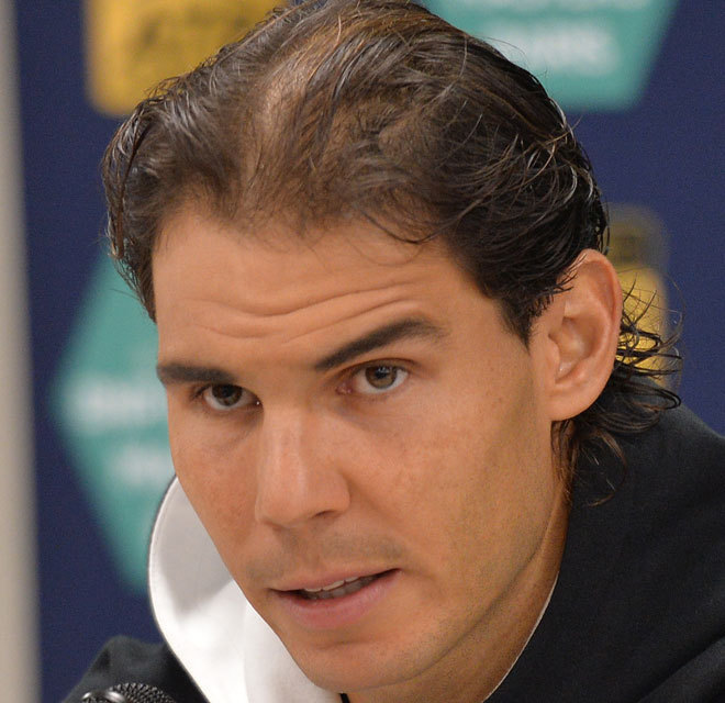 hair transplant - Rafa Nadal