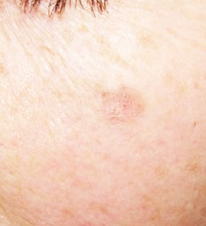 Lesiones Cutáneas - Queratosis