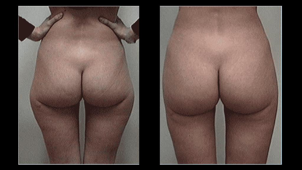 Fotos de depilacion laser antes y despues de adelgazar