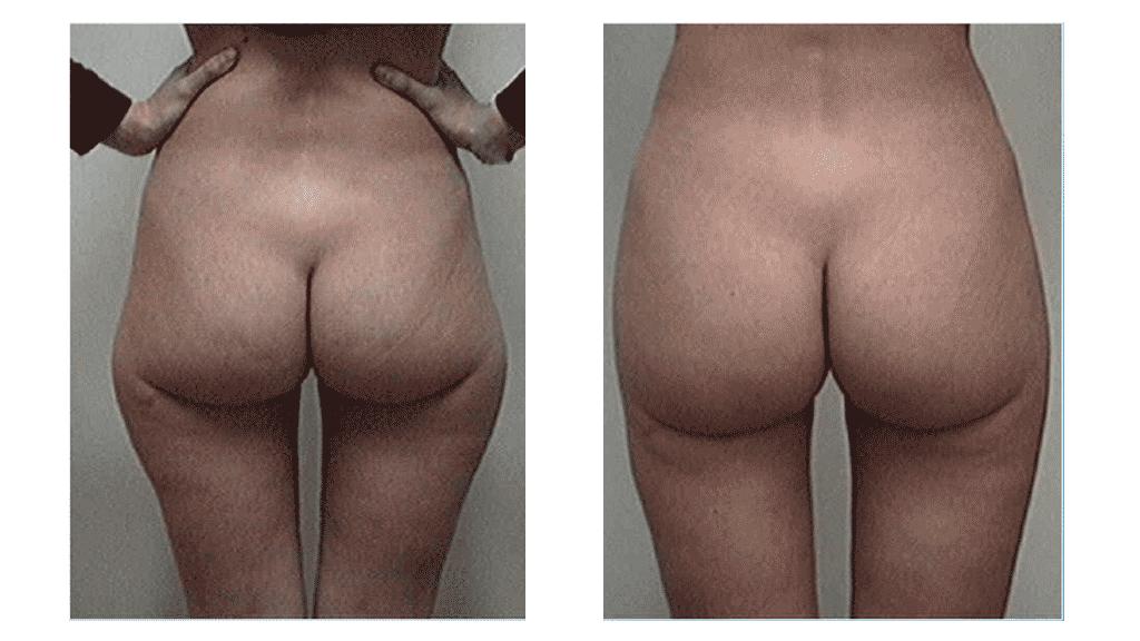 Pexia periareolar antes y despues de adelgazar