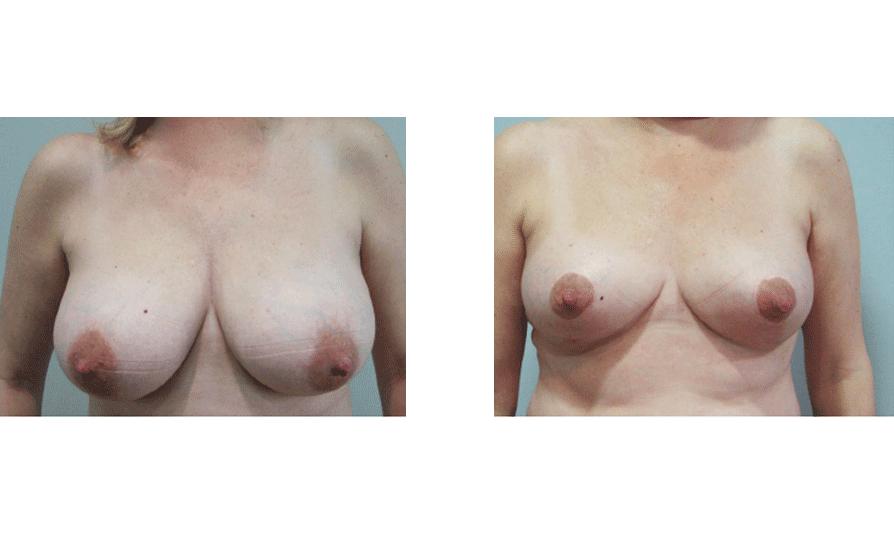 Reconstrucción mastectomía
