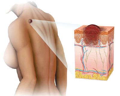 Melanoma - Cancer de piel