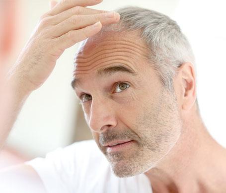 El cabello trasplantado no vuelve a caer