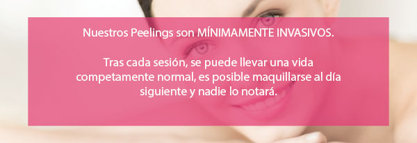 Peeling Facial Mínimamente invasivo