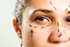 Remodelacion Facial Sin Cirugia