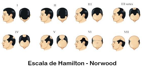 Trasplante de pelo - Madrid, Marbella, Sevilla, Huelva